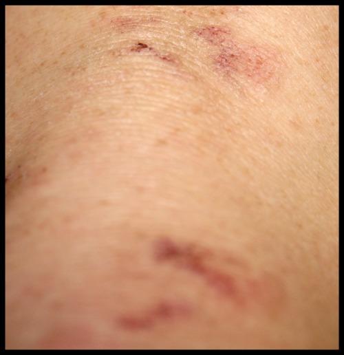 Dermatitis herpetiformis crack skin