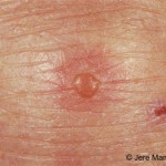 "Dermatitis Herpetiformis and other ""Atypical"" Symptoms of Gluten Sensitivity"