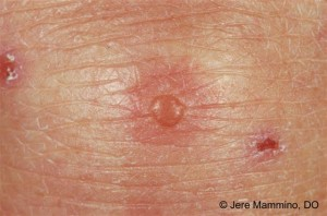 Dermatitis_herpetiformis_2_high